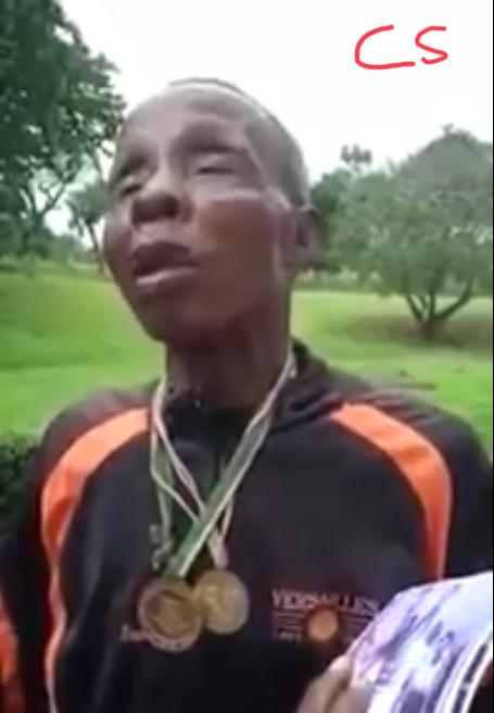 Blind Nigerian Boxer: Nigeria Boxing Forum Renders Assistance